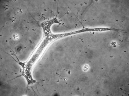 Arachnula impatiens, a microorganism found on walls, is a predatory protozoan