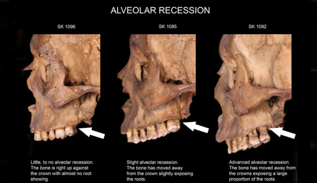 Examples of alveolar recession