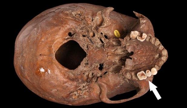 Prehistoric skull
