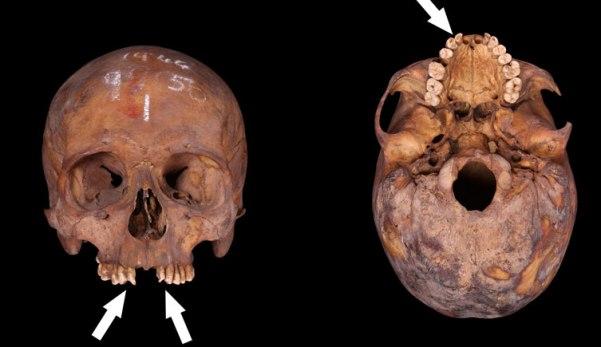 Post medieval adult skull