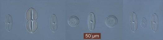 Freshwater_diatoms